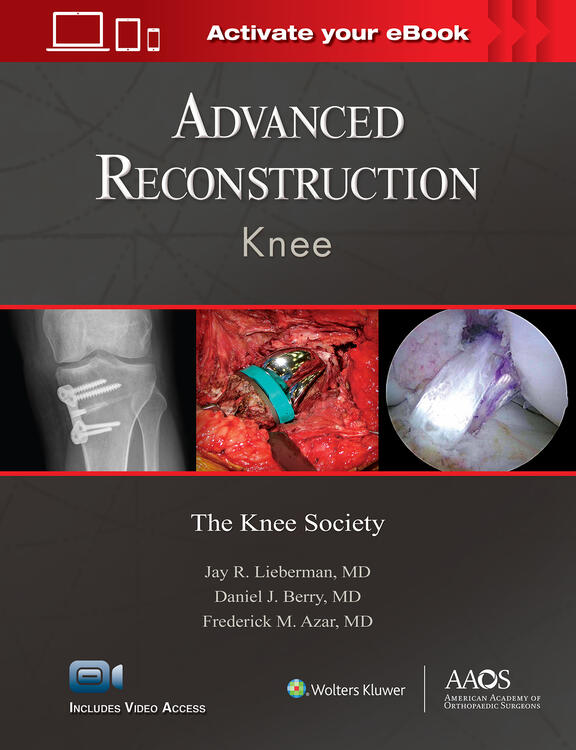 Advanced Reconstruction: Knee: Print + Ebook with Multimedia