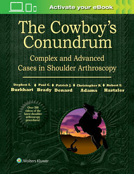 The cowboys conundrum complex and advanced cases the cowboys conundrum complex and advanced cases in shoulder arthroscopy fandeluxe Image collections