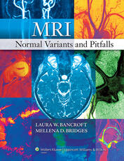MRI Normal Variants and Pitfalls