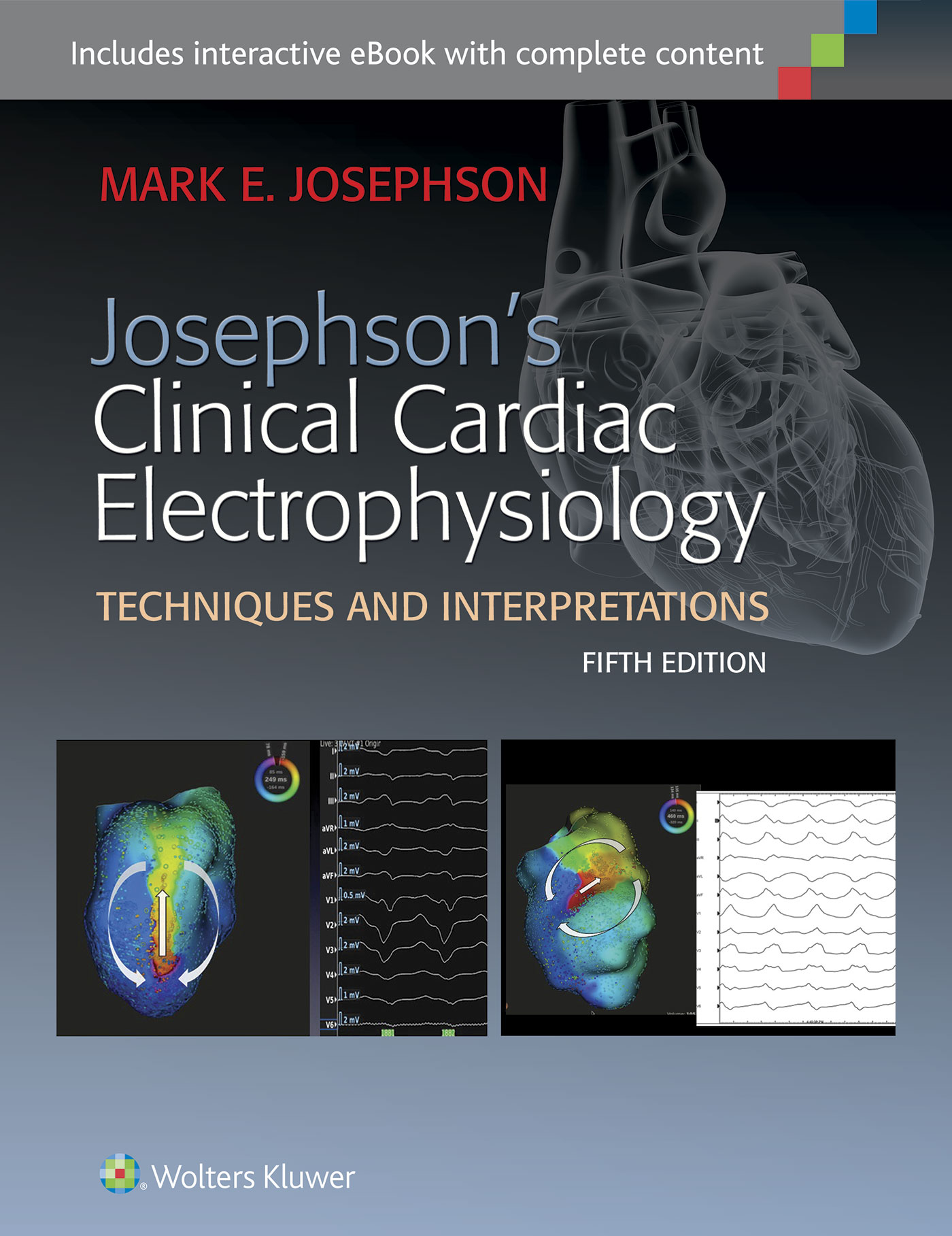 Josephsons clinical cardiac electrophysiology fandeluxe Images