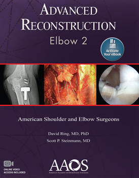 Advanced Reconstruction: Elbow 2: Print + Ebook with Multimedia