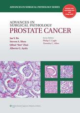 Advances in Surgical Pathology: Prostate Cancer