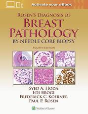 Rosen's Diagnosis of Breast Pathology by Needle Core Biopsy