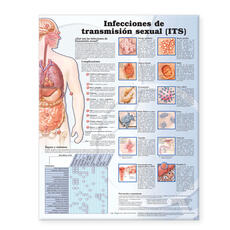 Sexually Transmitted Infections Anatomical Chart in Spanish (Infecciones de transmisión sexual)