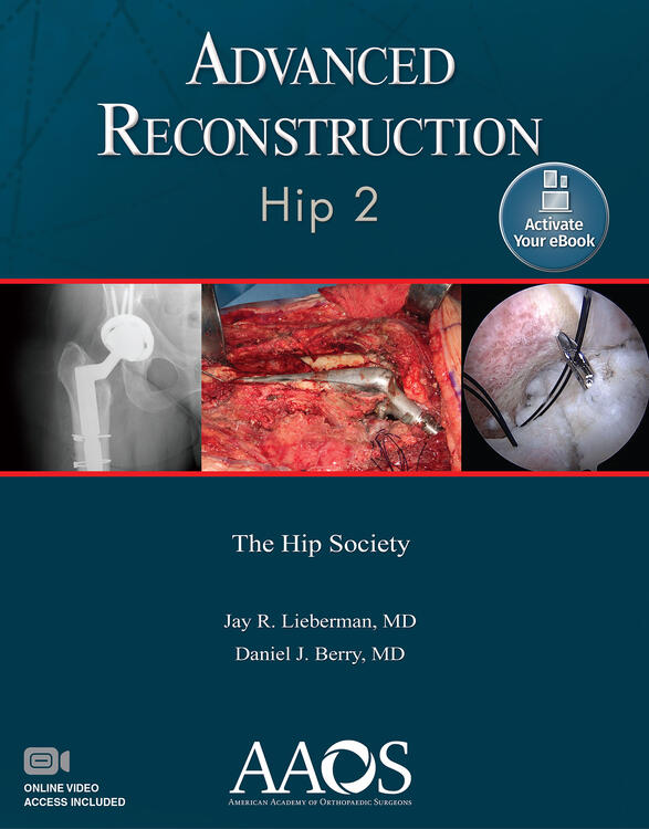 Advanced Reconstruction: Hip 2: Print + Ebook with Multimedia