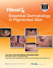 VisualDx: Essential Dermatology in Pigmented Skin