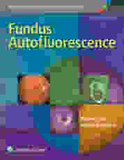Fundus Autofluorescence