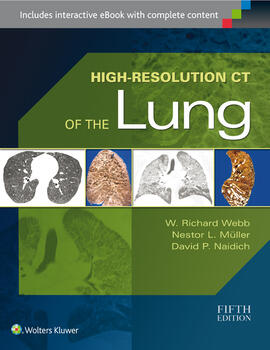 High resolution ct of the lung fandeluxe Images