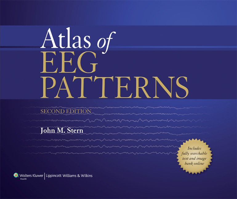Atlas of eeg patterns fandeluxe Image collections