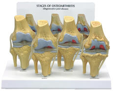 4-Stage Osteoarthritis Model