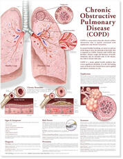 Chronic Obstructive Pulmonary Disease Anatomical Chart