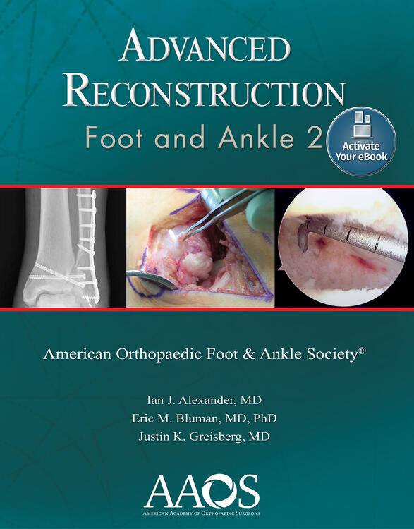 Advanced Reconstruction: Foot and Ankle 2: Ebook without Multimedia