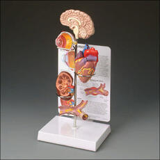 Hypertension Model