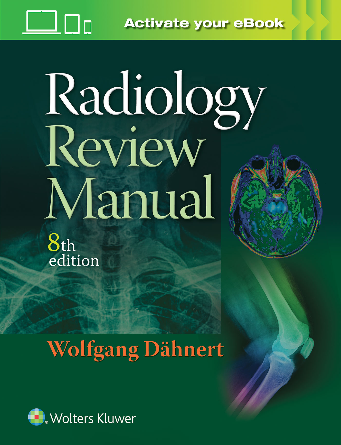 Radiology review manual 634b67bd ebe3 49c7 b0e4 4b715bbd66d6 fandeluxe Images