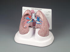 Diseased Lung Model