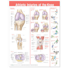 Athletic Injuries of the Knee Anatomical Chart