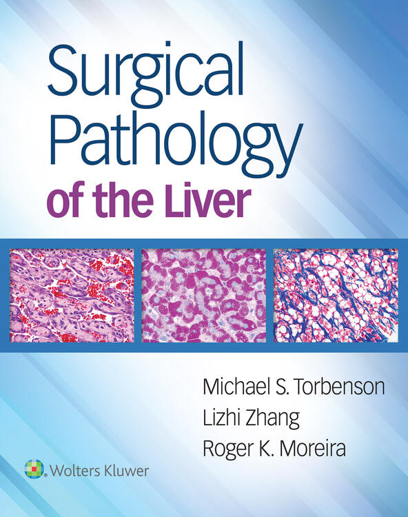 Surgical Pathology of the Liver