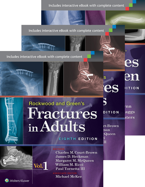 Adult fracture green in rockwood tubes picture galleries