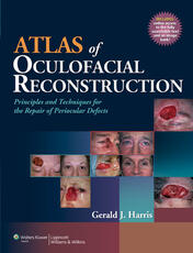 Atlas of Oculofacial Reconstruction