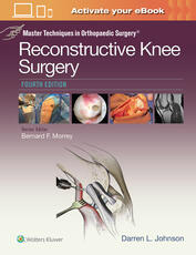 Master Techniques in Orthopaedic Surgery: Reconstructive Knee Surgery