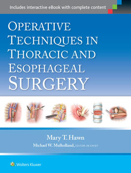 Operative techniques in thoracic and esophageal surgery a76e89b5 e124 4317 9498 e2f4d460f861max350quality75mzcb1529489536663 fandeluxe Choice Image