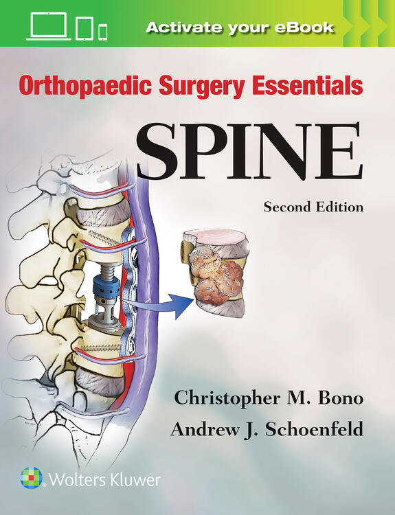 Orthopaedic Surgery Essentials: Spine