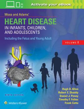 Moss adams heart disease in infants moss adams heart disease in infants children and adolescents including the fandeluxe Gallery