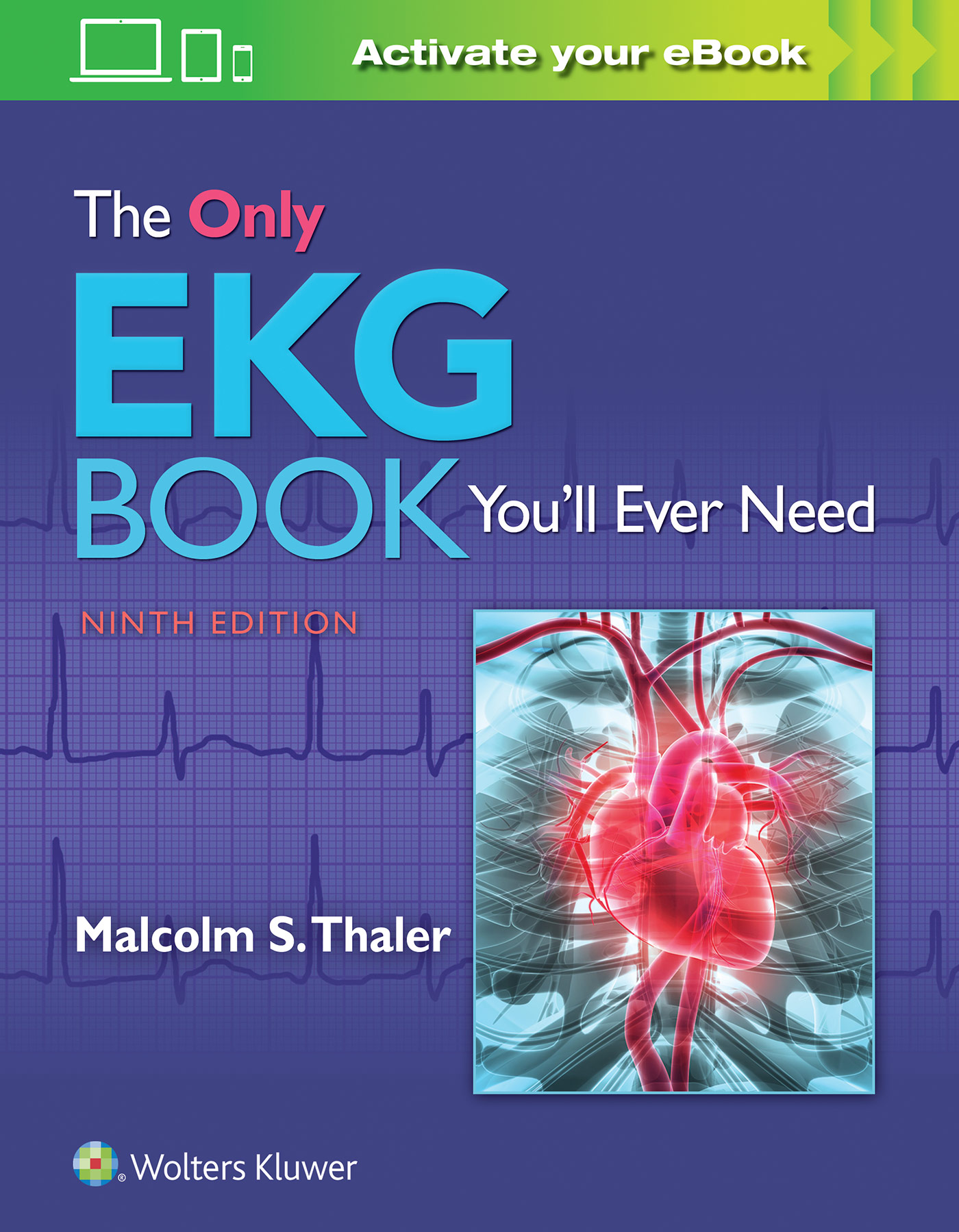 The only ekg book youll ever need fandeluxe Images
