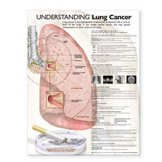 Understanding Lung Cancer Anatomical Chart