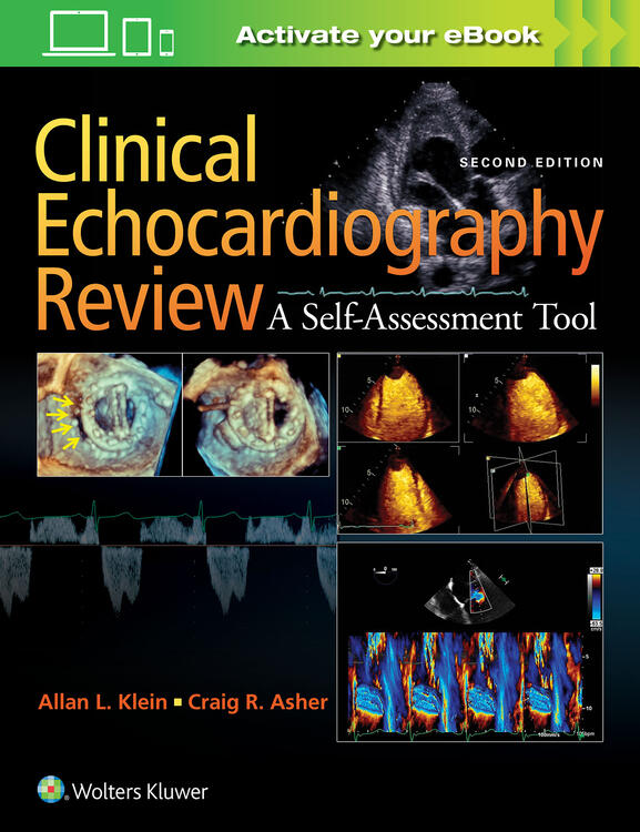 Clinical echocardiography review fandeluxe Gallery