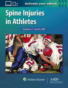 Spine injuries in athletes fandeluxe Gallery