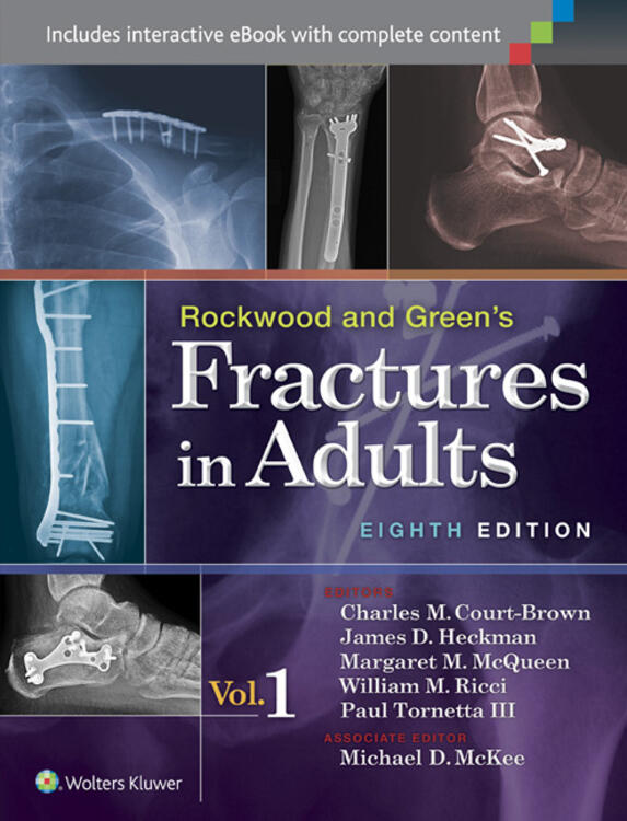 3 adult fracture green in rockwood volume