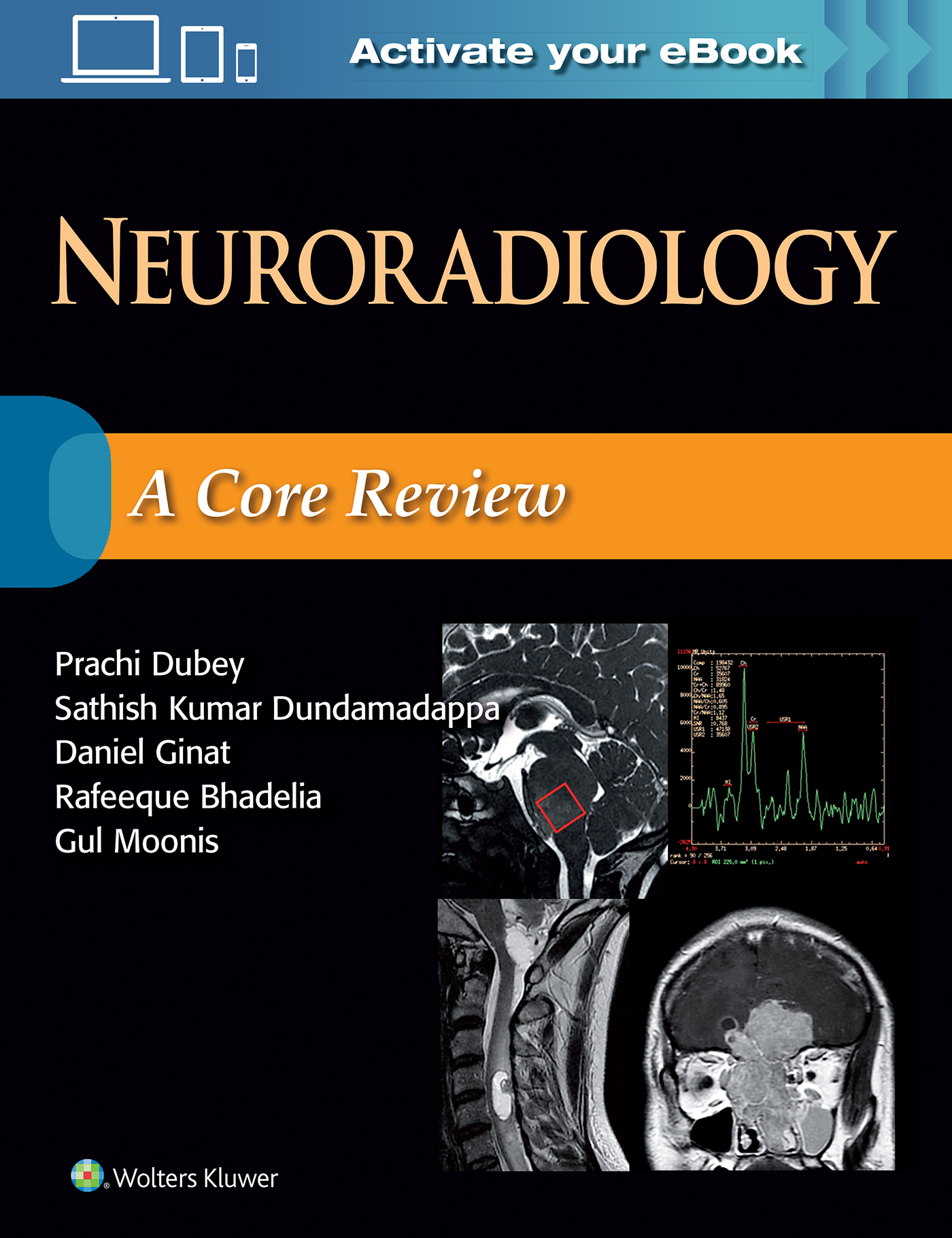Neuroradiology a core review fandeluxe Choice Image
