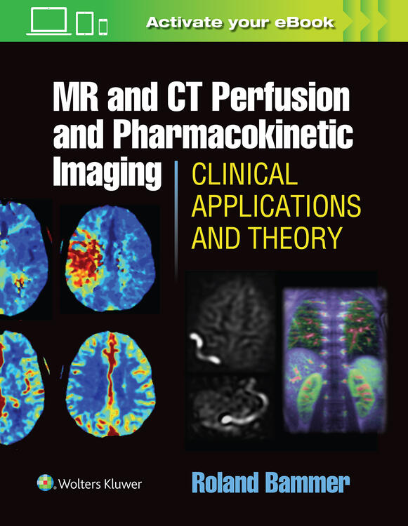 MR and CT Perfusion and Pharmacokinetic Imaging: Clinical Applications and Theoretical Principles