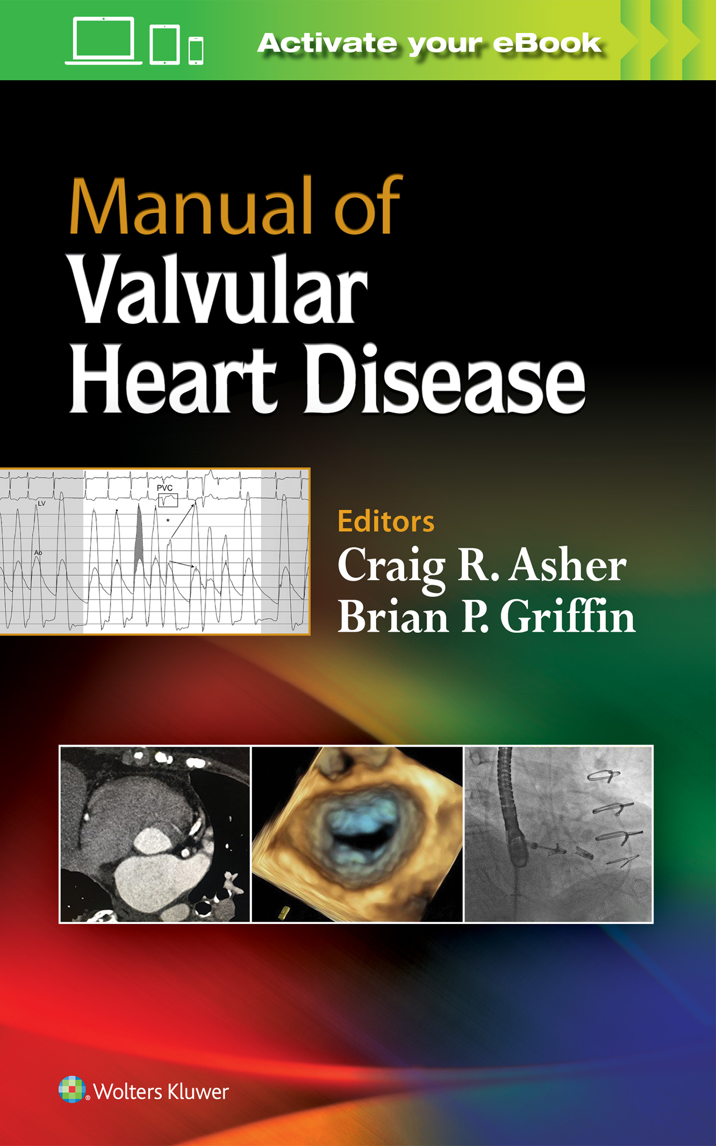 Guide to prosthetic cardiac valves ebook array manual of valvular heart disease rh shop lww com fandeluxe Gallery