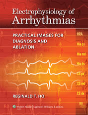 Electrophysiology of Arrhythmias