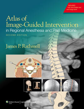 Atlas of Image-Guided Intervention in Regional Anesthesia and Pain Medicine