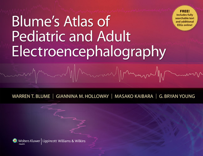 Blumes atlas of pediatric and adult electroencephalography fandeluxe Image collections